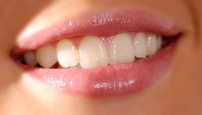 veneers_dental